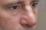 5-Fake nose