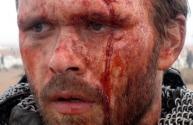 7-Arn wound