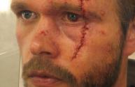 4-Arn scar